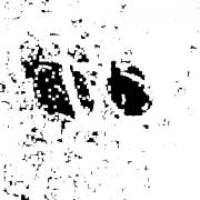 Blob détection : Etape 4 : Seuils